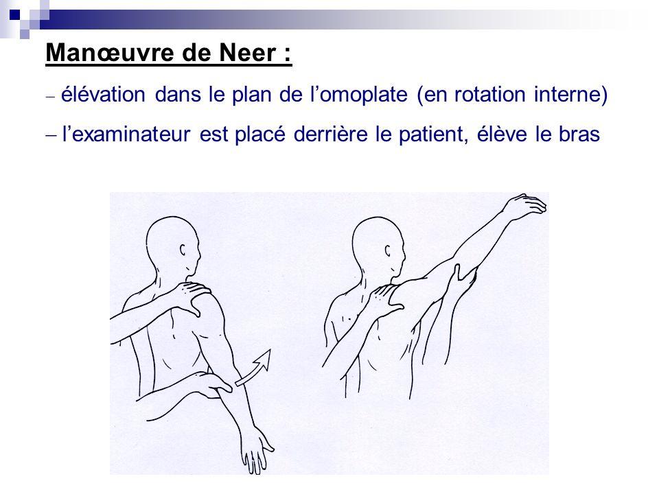 Manœuvre de Neer : - élévation dans le plan de l'omoplate (en rotation interne) - l'examinateur est placé derrière le patient, élève le bras.