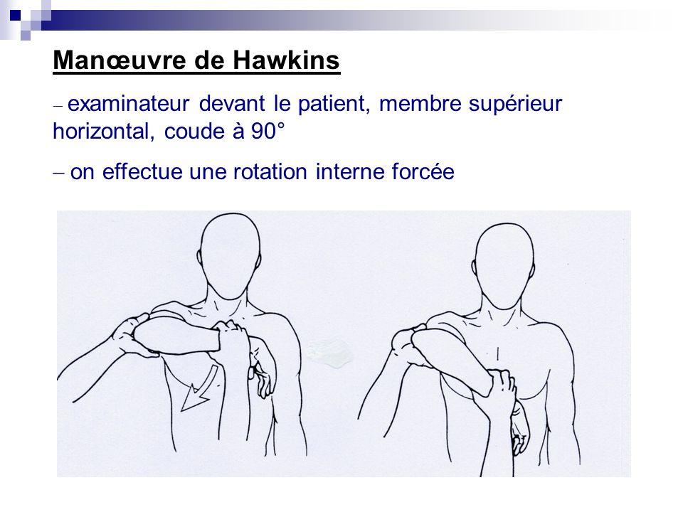 Manœuvre de Hawkins - on effectue une rotation interne forcée