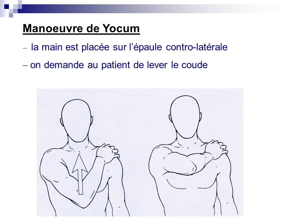Manoeuvre de Yocum - on demande au patient de lever le coude