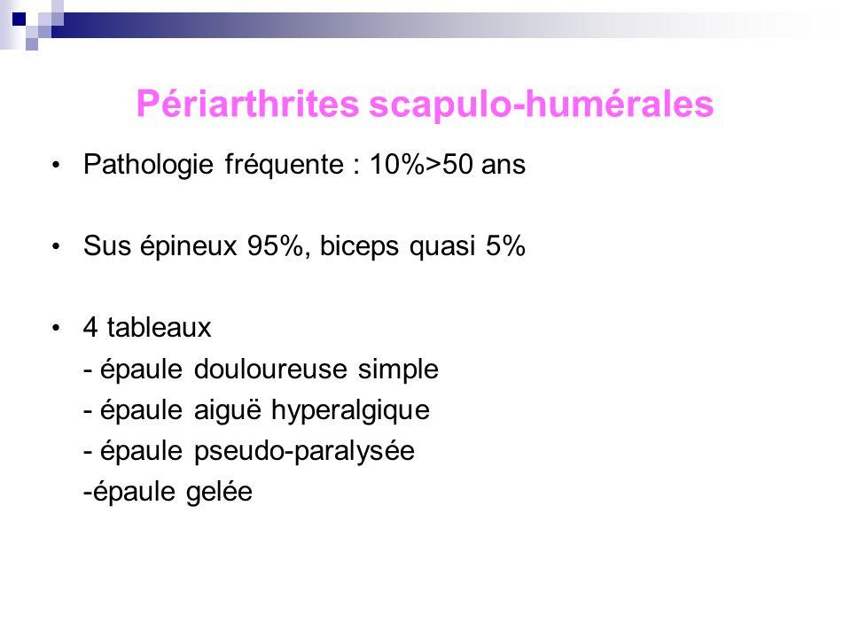 Périarthrites scapulo-humérales