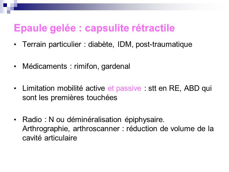Epaule gelée : capsulite rétractile