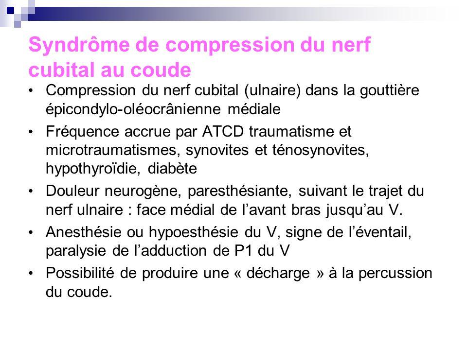 Syndrôme de compression du nerf cubital au coude