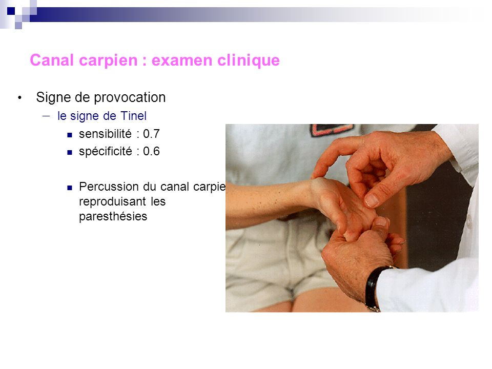 Canal carpien : examen clinique