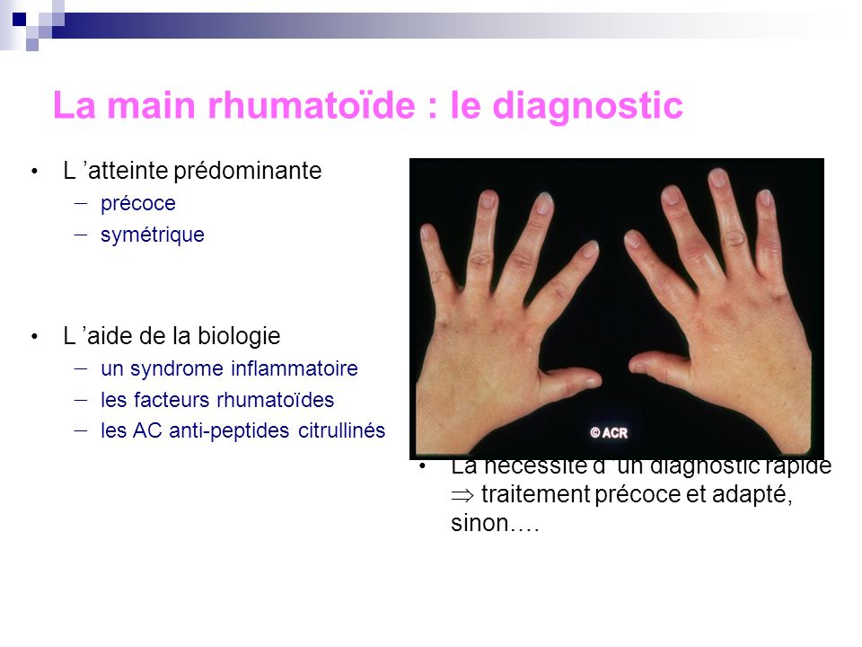 La main rhumatoïde : le diagnostic