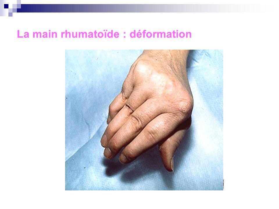 La main rhumatoïde : déformation