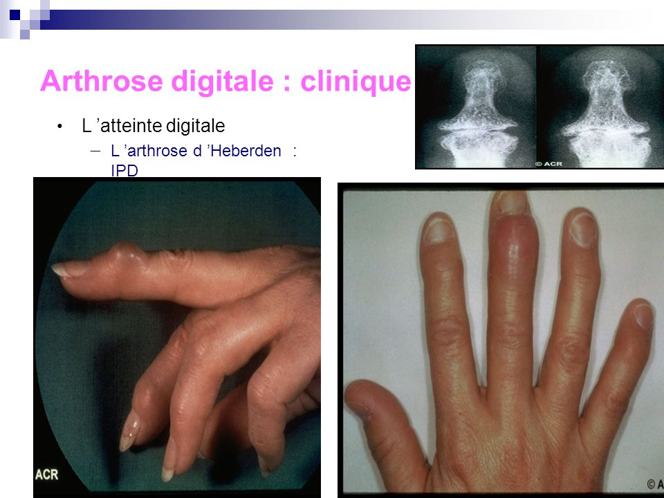 Arthrose digitale : clinique