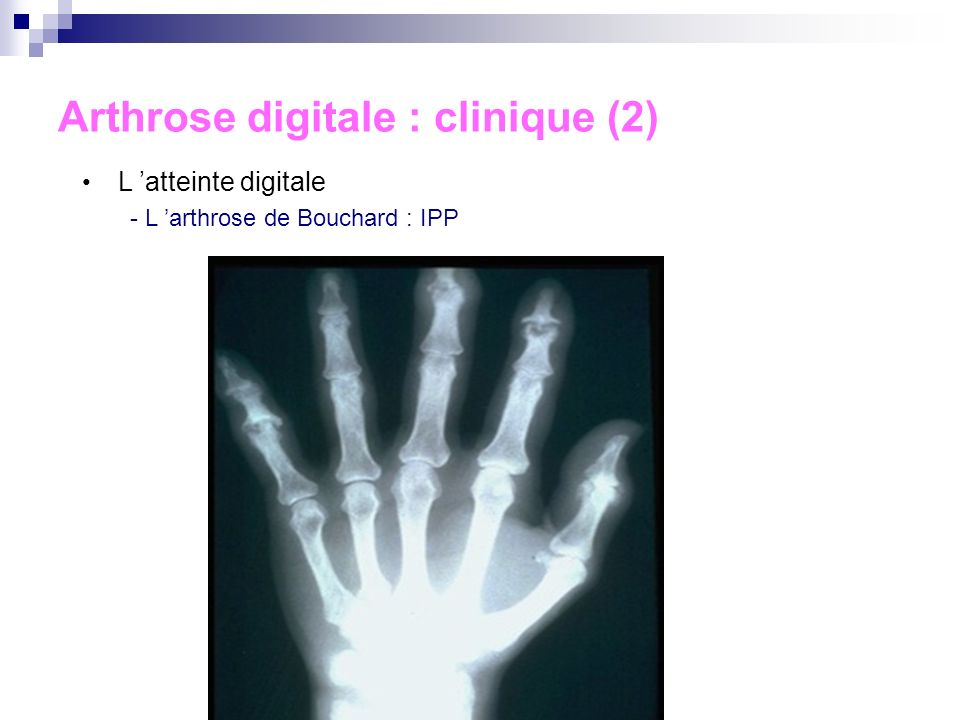 Arthrose digitale : clinique (2)