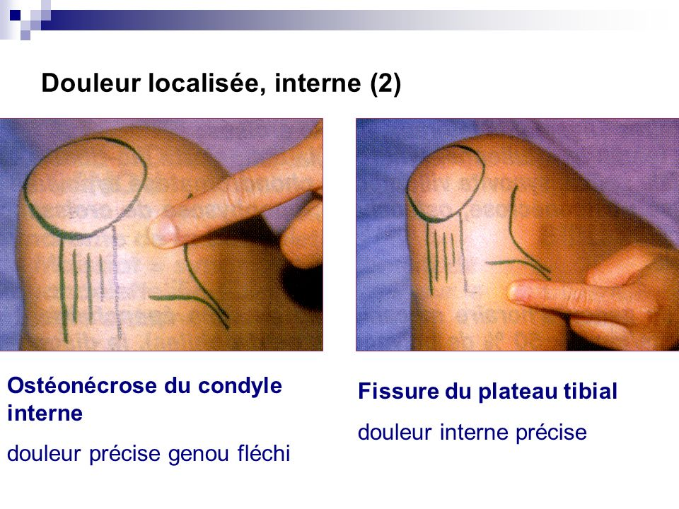 Douleur localisée, interne (2)