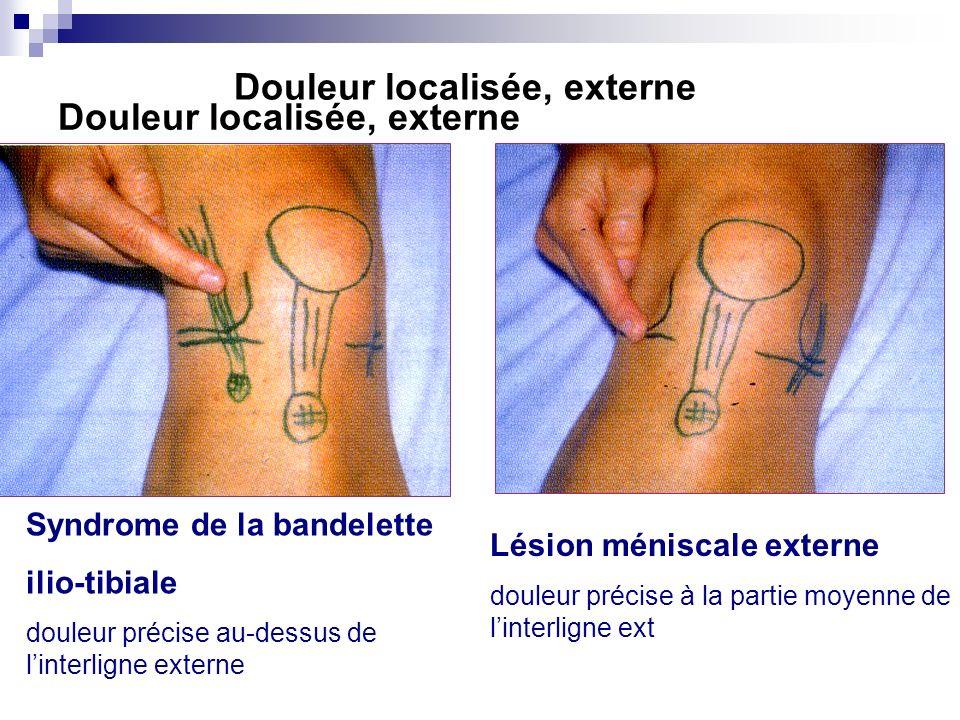 Douleur localisée, externe