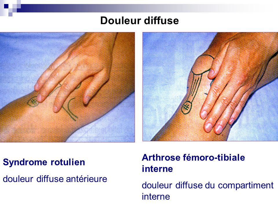 Douleur diffuse Arthrose fémoro-tibiale interne Syndrome rotulien