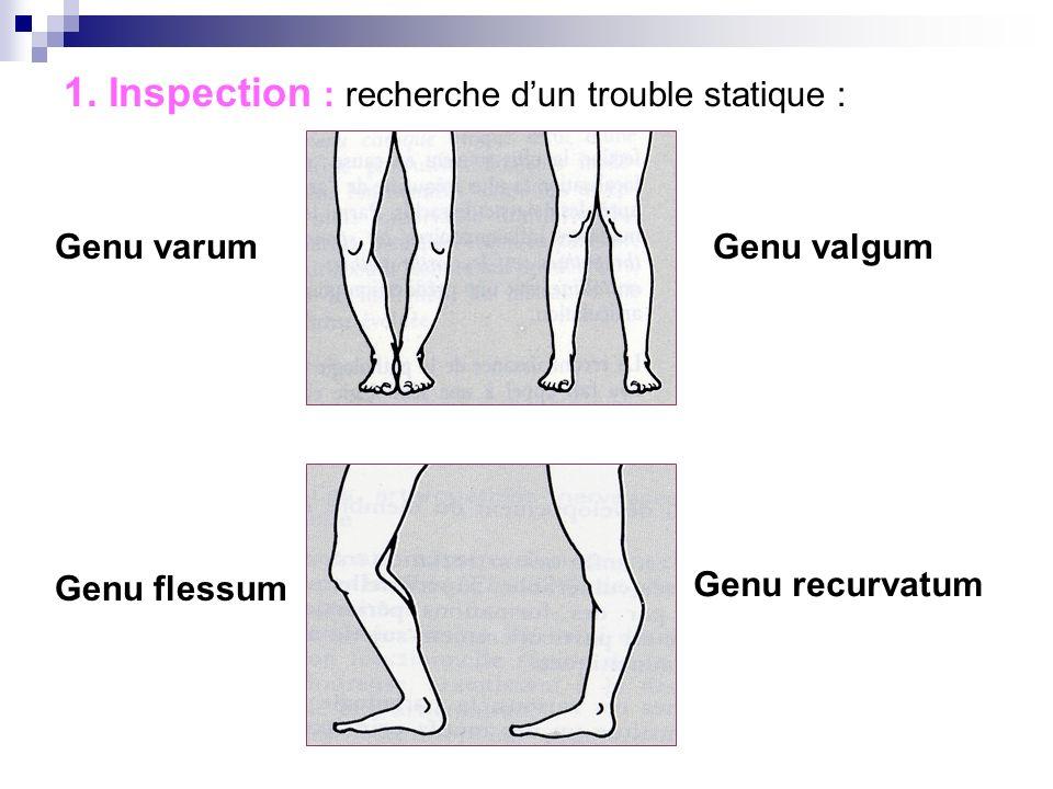 1. Inspection : recherche d'un trouble statique :