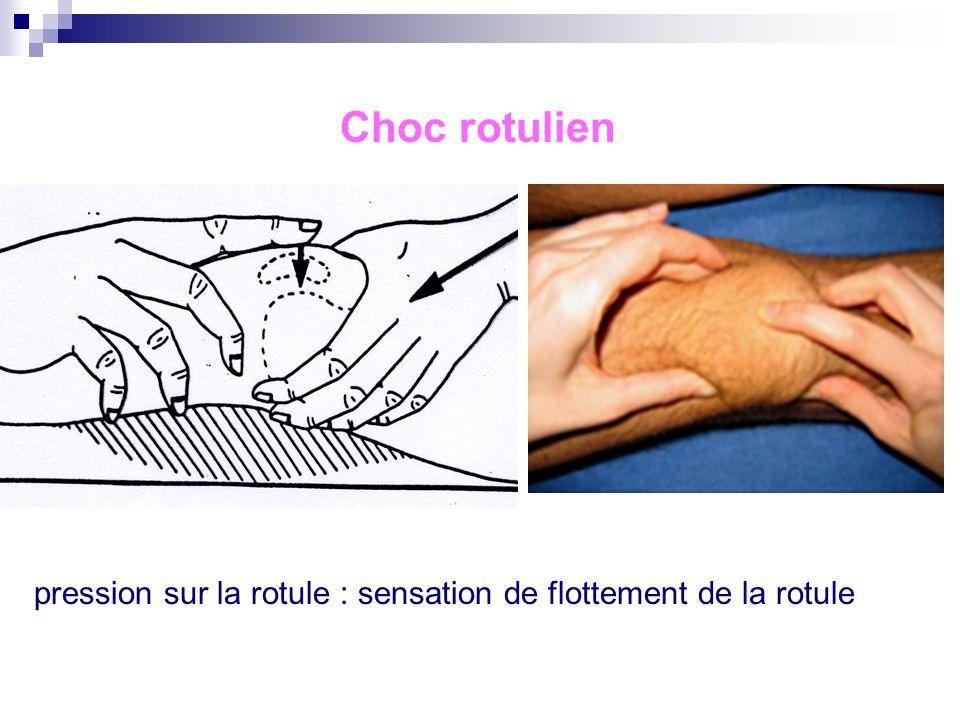 Choc rotulien pression sur la rotule : sensation de flottement de la rotule