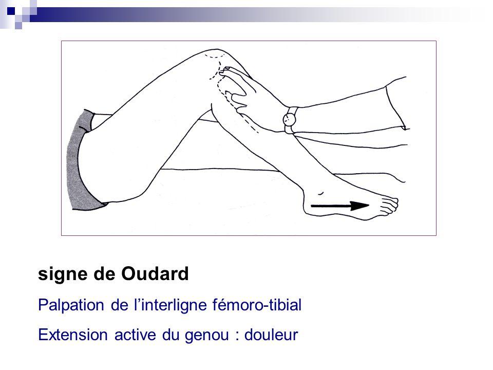 signe de Oudard Palpation de l'interligne fémoro-tibial