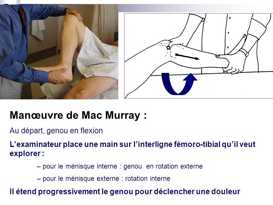 Manœuvre de Mac Murray :