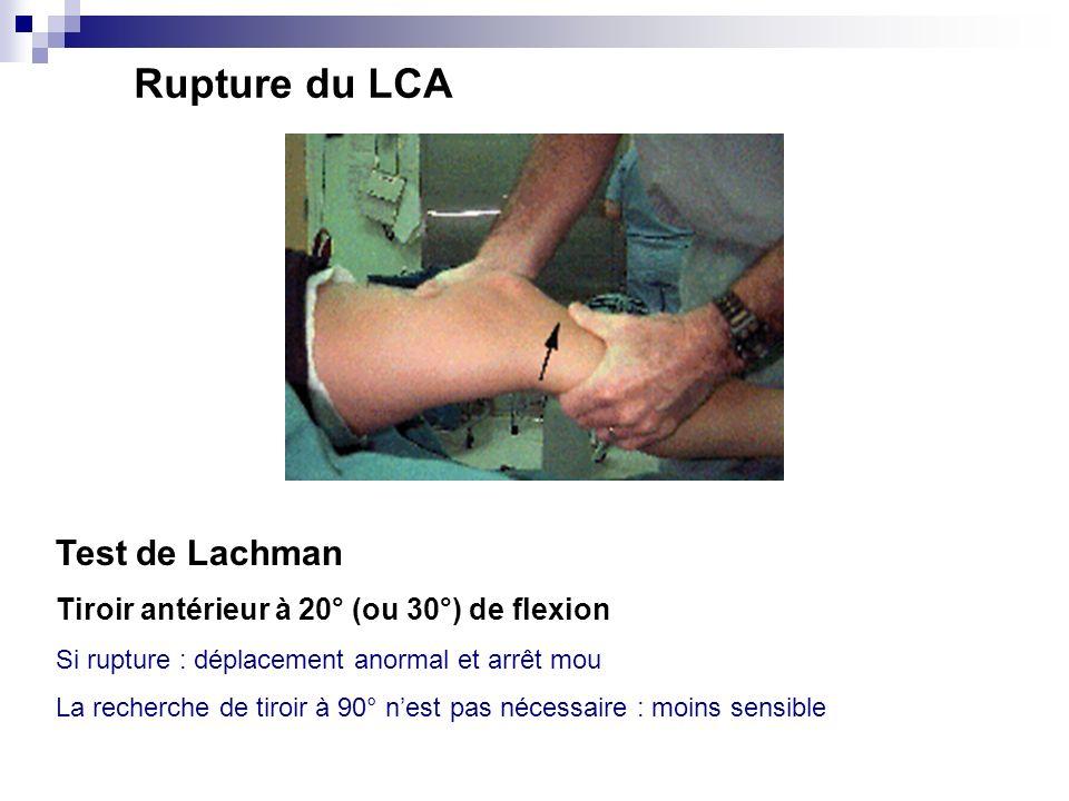 Rupture du LCA Test de Lachman