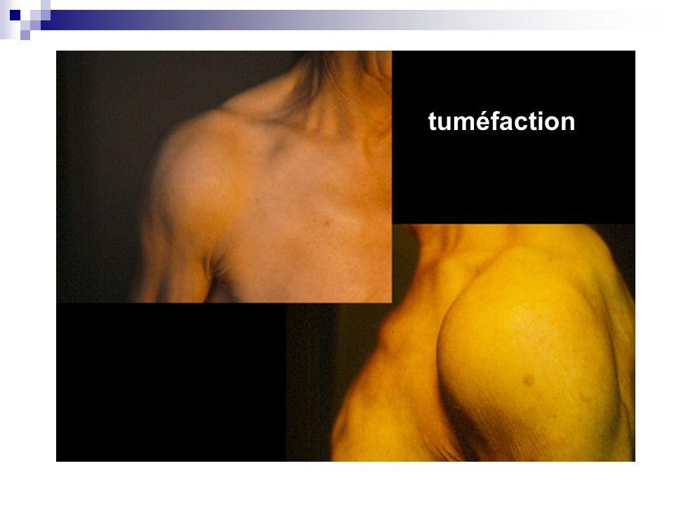 tuméfaction