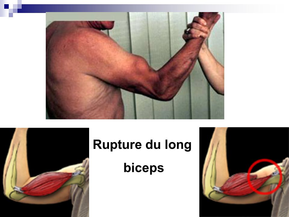Rupture du long biceps