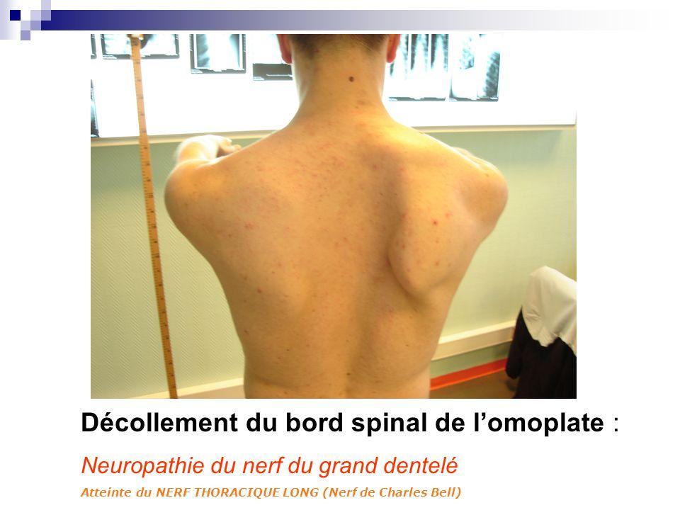 Décollement du bord spinal de l'omoplate :