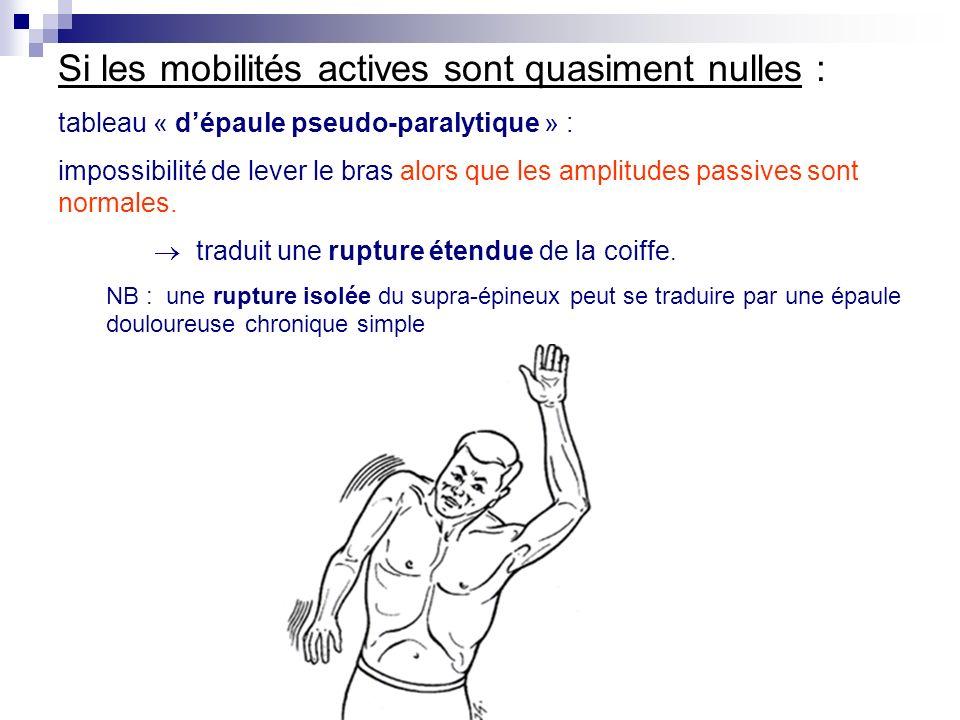Si les mobilités actives sont quasiment nulles :
