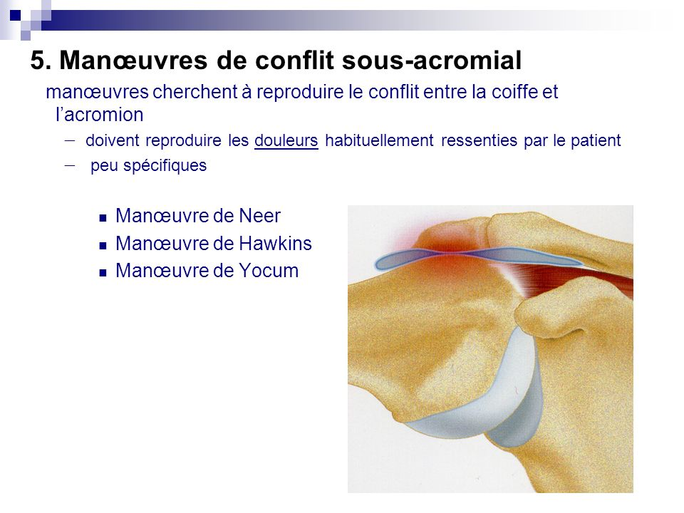 5. Manœuvres de conflit sous-acromial
