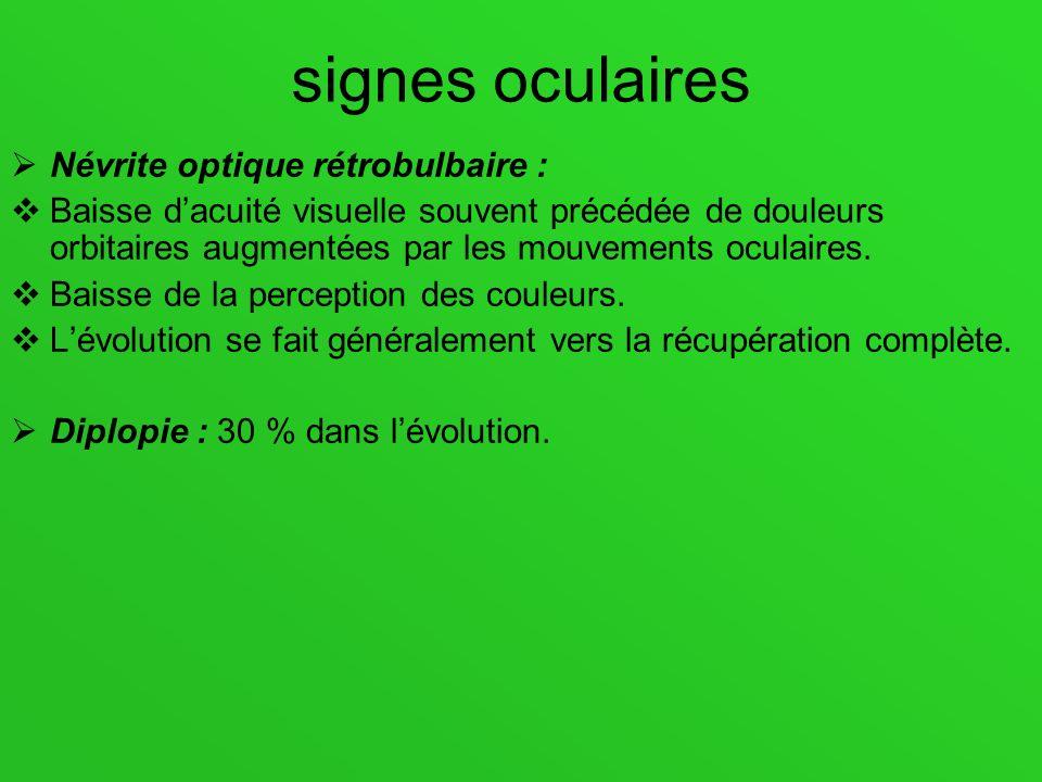 signes oculaires Névrite optique rétrobulbaire :