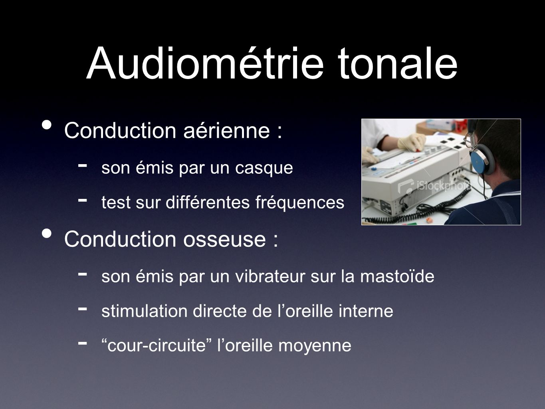 Audiométrie tonale Conduction aérienne : Conduction osseuse :