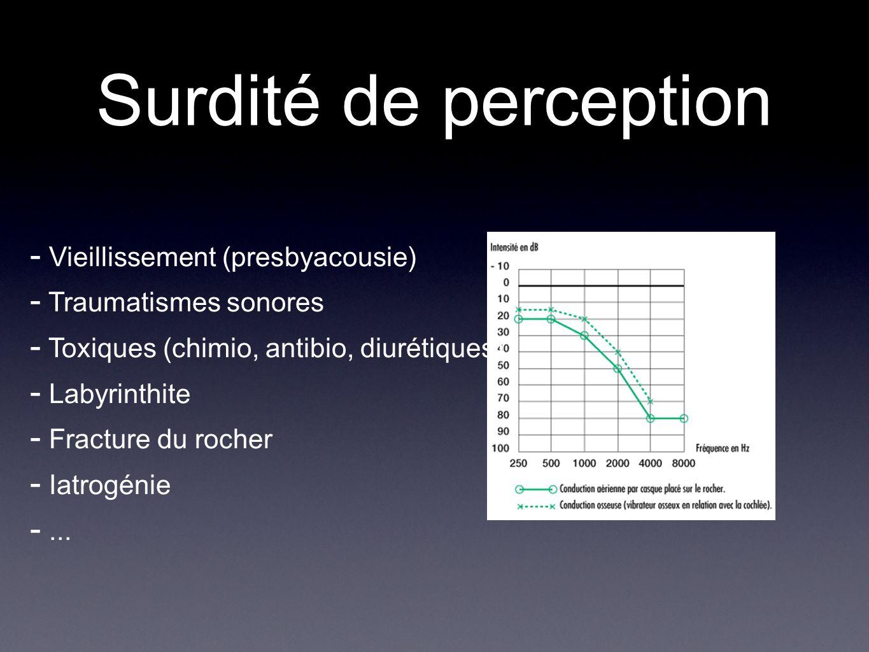 Surdité de perception Vieillissement (presbyacousie)