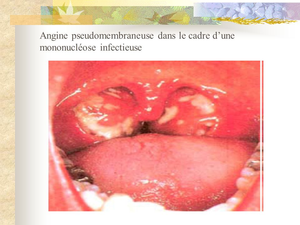 Angine pseudomembraneuse dans le cadre d'une mononucléose infectieuse