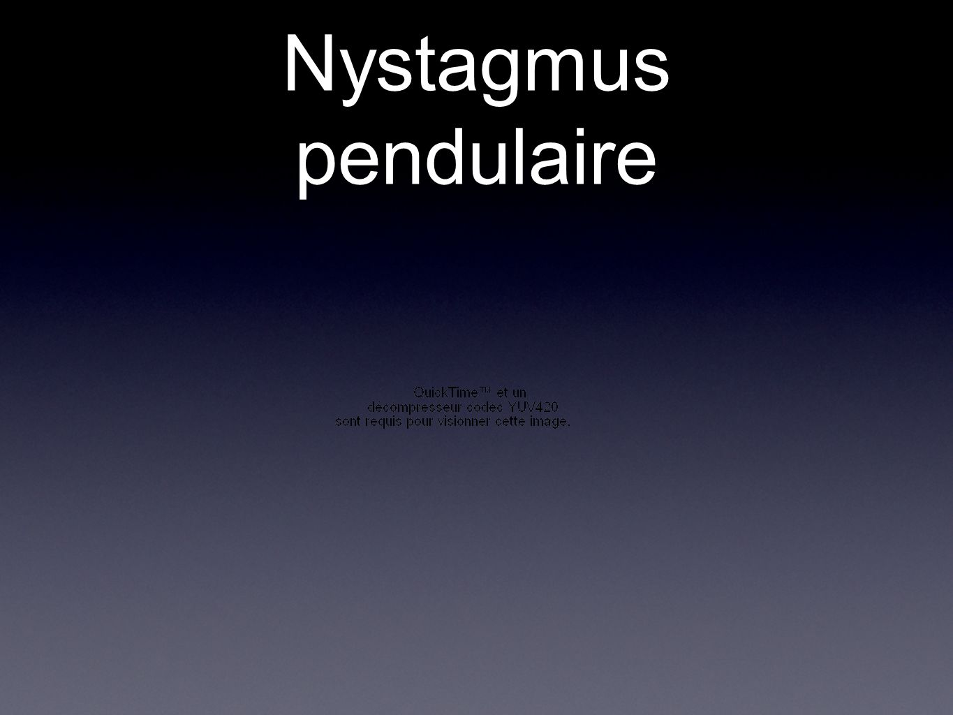Nystagmus pendulaire