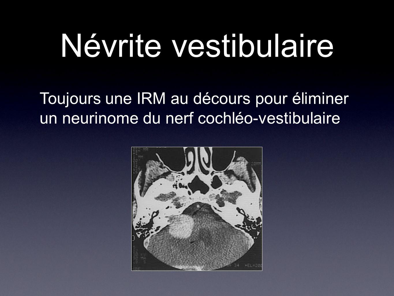 Névrite vestibulaire Toujours une IRM au décours pour éliminer un neurinome du nerf cochléo-vestibulaire.