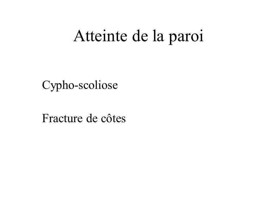 Atteinte de la paroi Cypho-scoliose Fracture de côtes