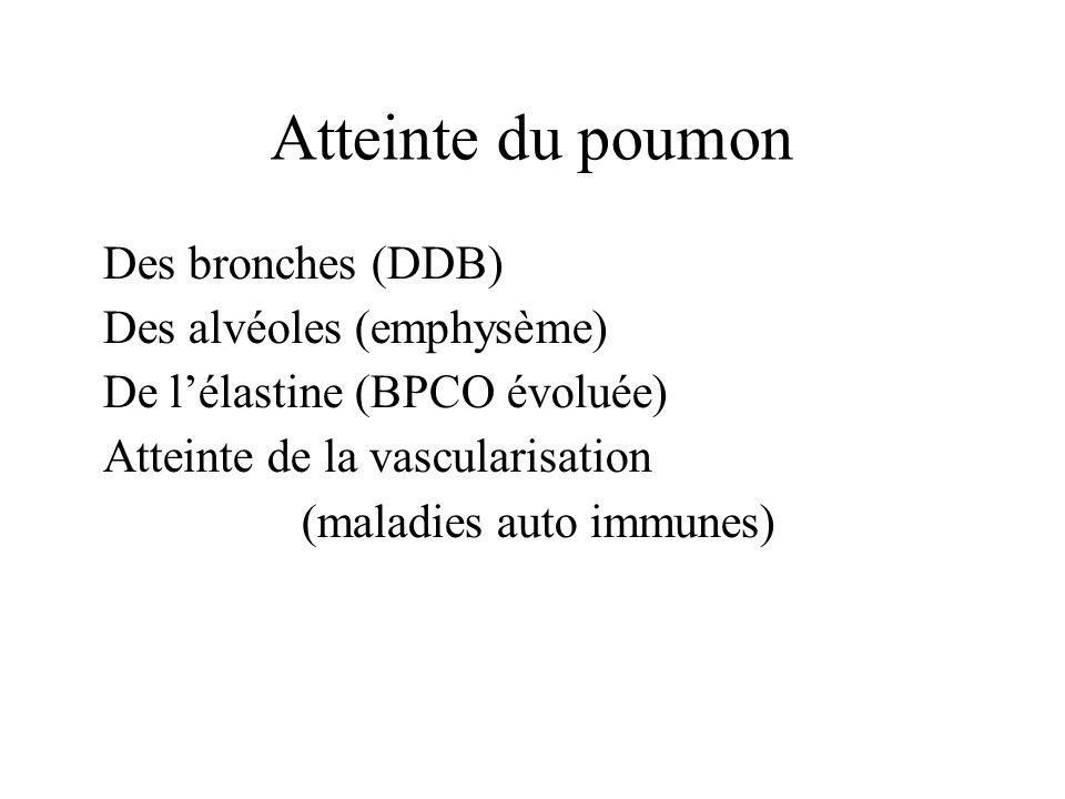 (maladies auto immunes)