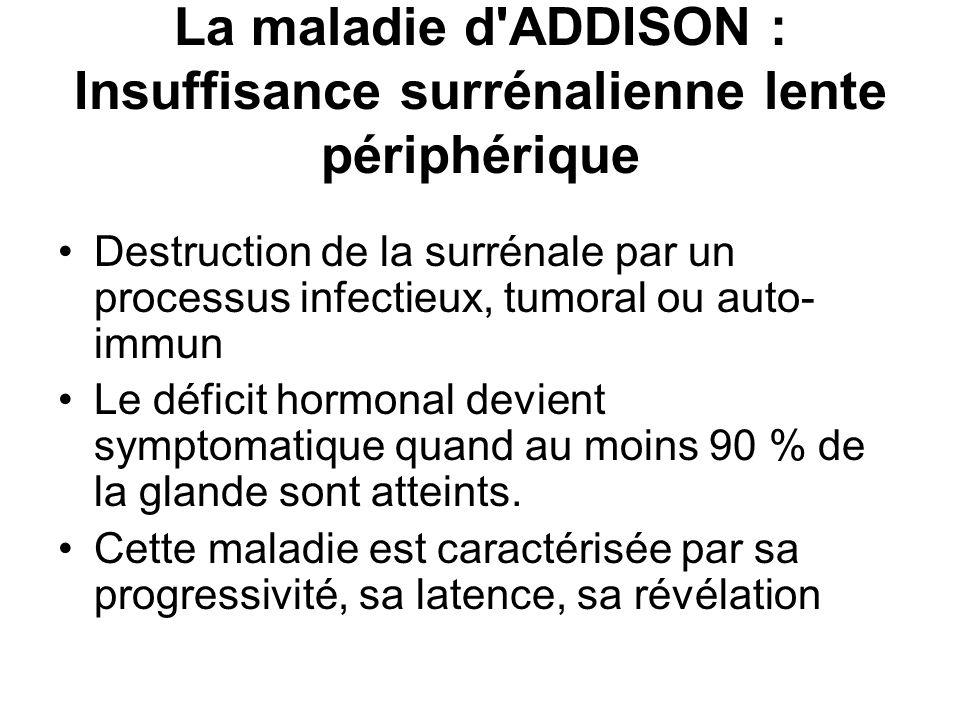 La maladie d ADDISON : Insuffisance surrénalienne lente périphérique