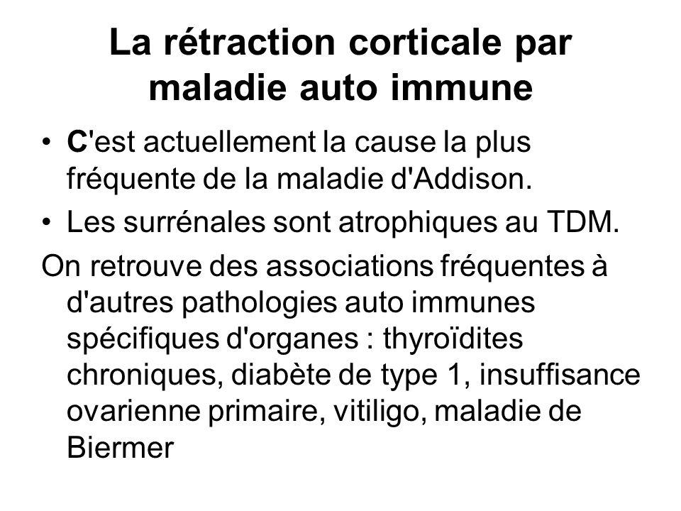 La rétraction corticale par maladie auto immune