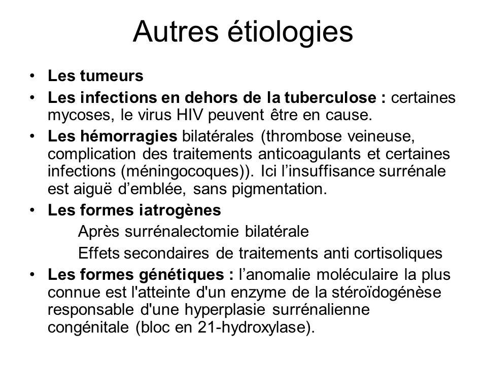 Autres étiologies Les tumeurs