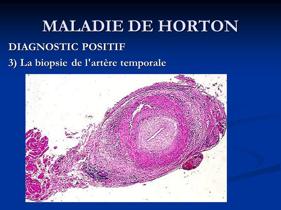 MALADIE DE HORTON DIAGNOSTIC POSITIF