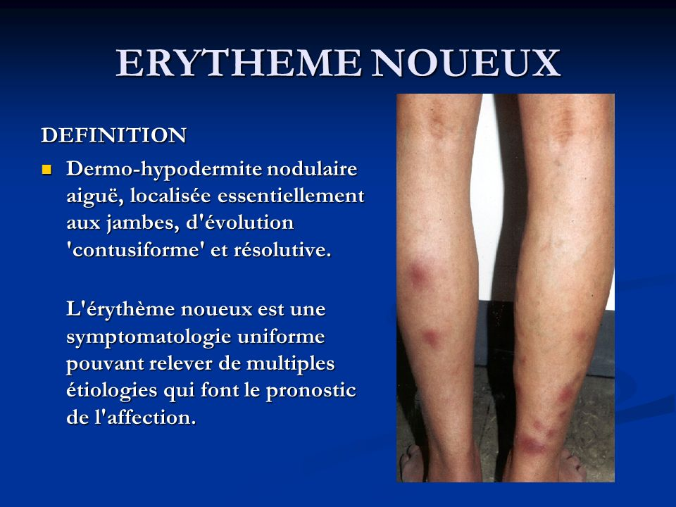 ERYTHEME NOUEUX DEFINITION