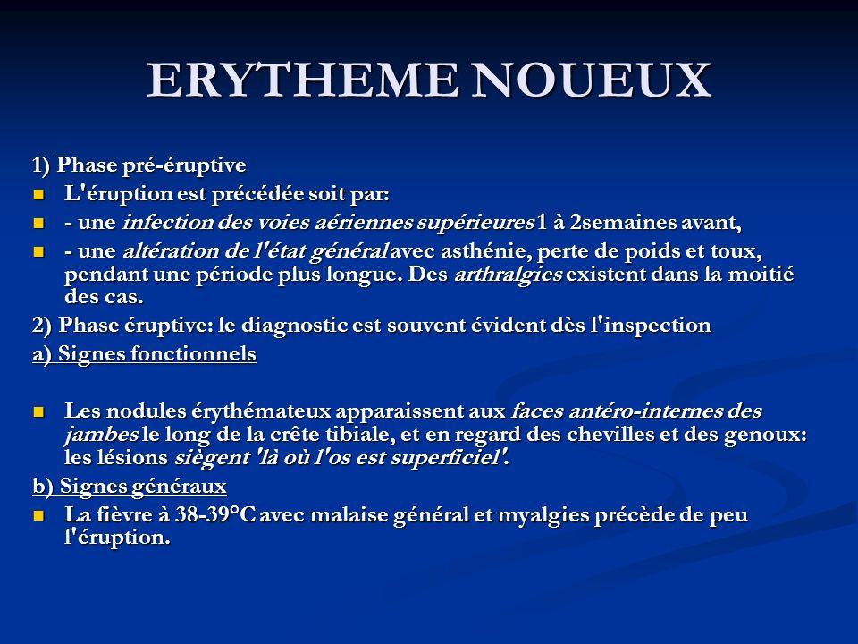 ERYTHEME NOUEUX 1) Phase pré-éruptive
