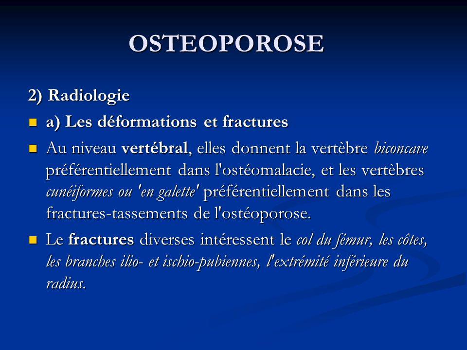 OSTEOPOROSE 2) Radiologie a) Les déformations et fractures