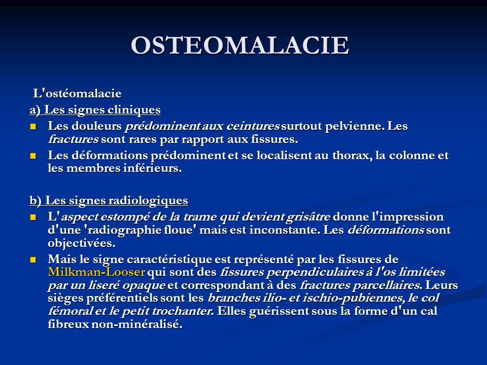 OSTEOMALACIE L ostéomalacie a) Les signes cliniques