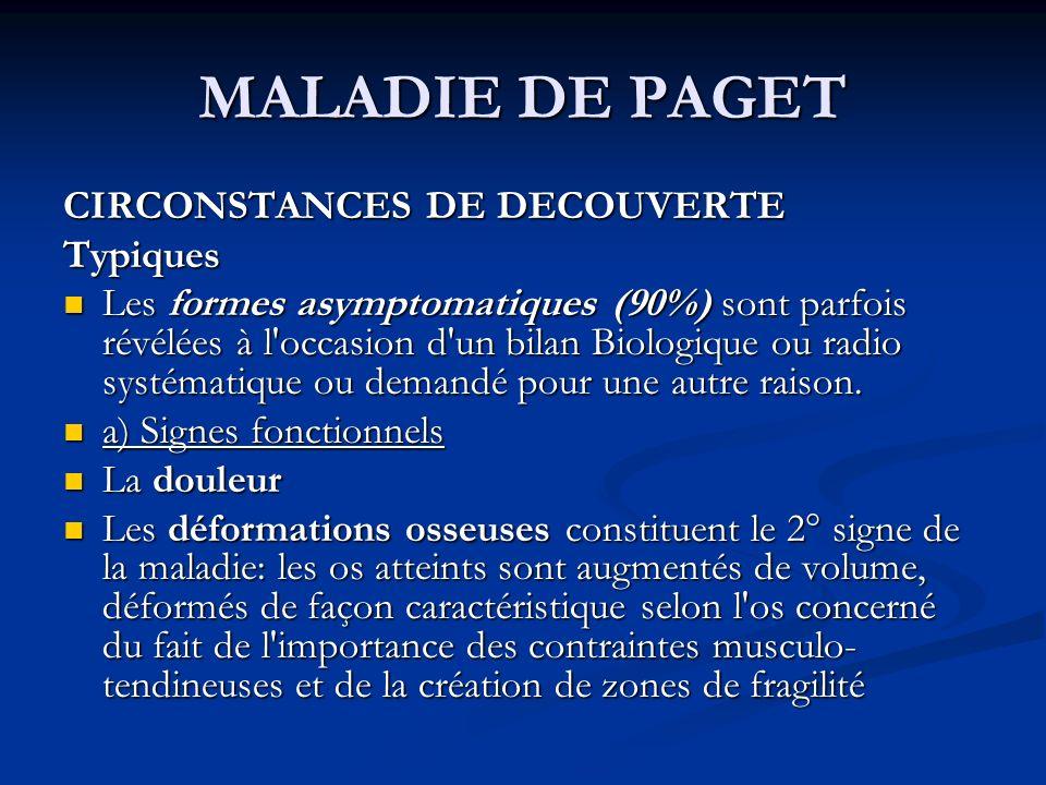 MALADIE DE PAGET CIRCONSTANCES DE DECOUVERTE Typiques