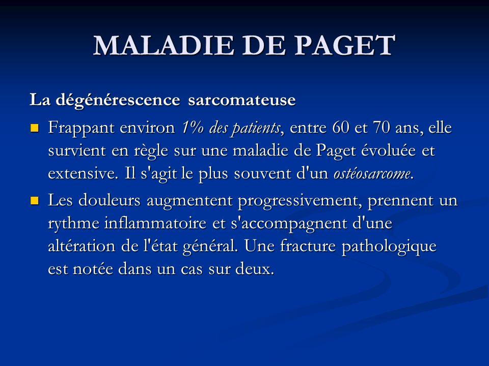 MALADIE DE PAGET La dégénérescence sarcomateuse