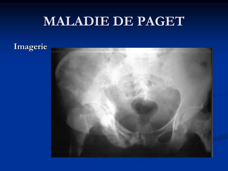 MALADIE DE PAGET Imagerie
