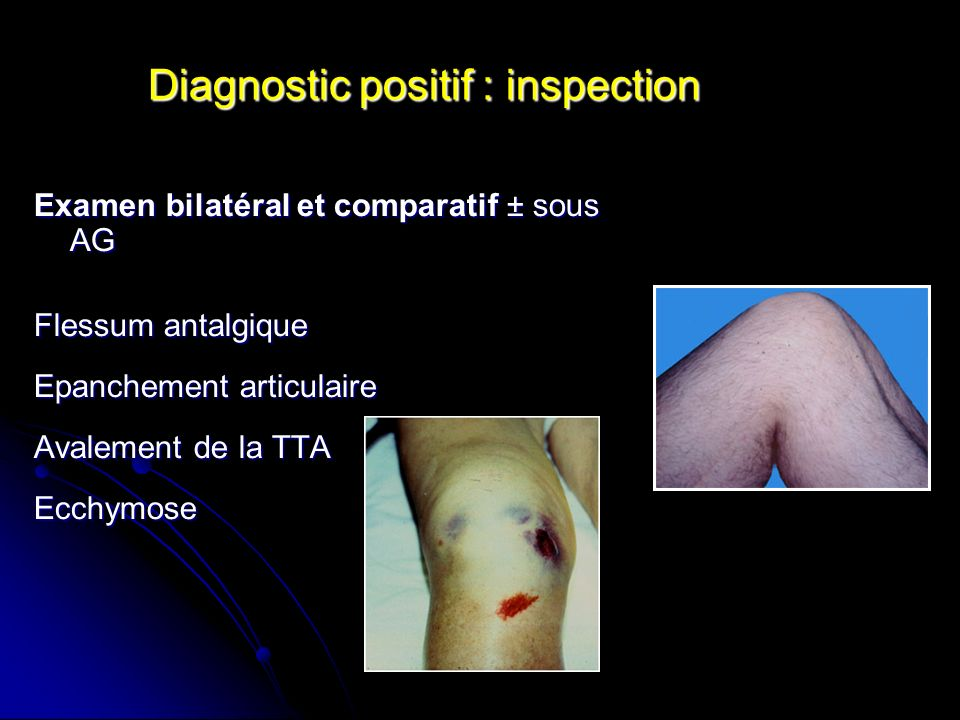 Diagnostic positif : inspection
