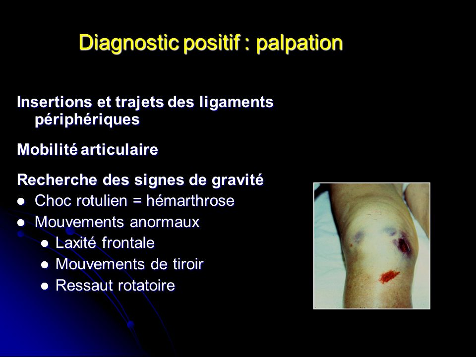 Diagnostic positif : palpation