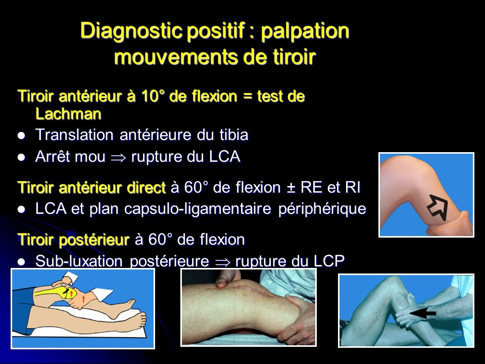 Diagnostic positif : palpation mouvements de tiroir