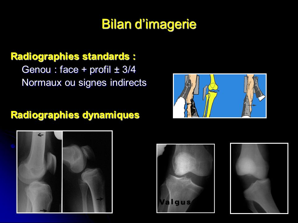 Bilan d'imagerie Radiographies standards : Genou : face + profil ± 3/4
