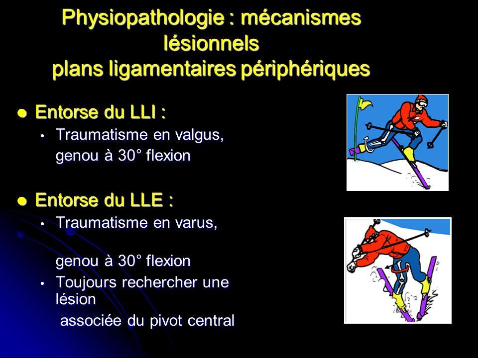 Physiopathologie : mécanismes lésionnels plans ligamentaires périphériques