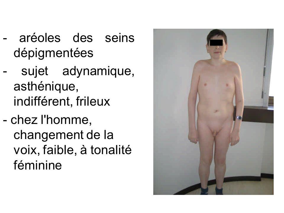 - aréoles des seins dépigmentées
