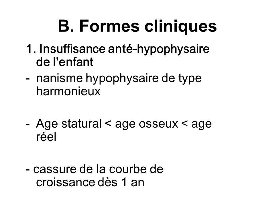 B. Formes cliniques 1. Insuffisance anté-hypophysaire de l enfant